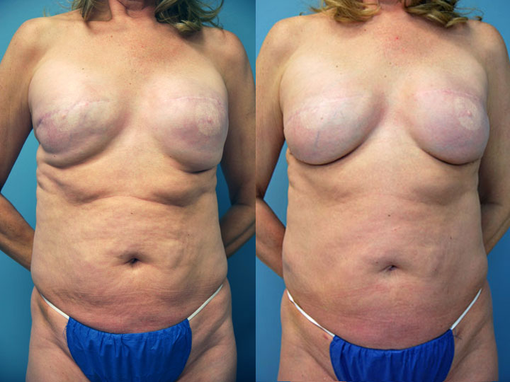 Unsatisfactory Breast Implant Revision and Removal
